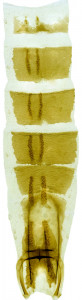 31 - 2817 Coleophora moronella abd.