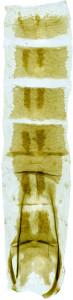 33 - 3858 Coleophora pustulosa abd.